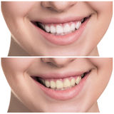 Young woman with healthy smile Stock Images