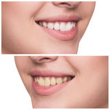 Young woman with healthy smile Stock Photo