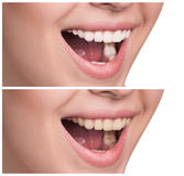 Young woman with healthy smile Royalty Free Stock Photography