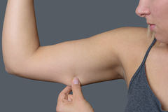 Young Woman Holding Excess Fat on her Arm. Close up Conscious Young Woman Holding Excess Fat on her Arm Against Grey Wall Background Royalty Free Stock Images