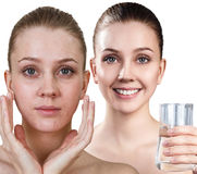 Young before and after cleansing by clear water. Young woman holding glass of water. Cleansing skin concept. Before and after cleansing royalty free stock photos