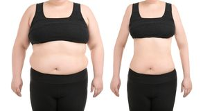 Young woman before and after liposuction operation. On white background, front view. Cosmetic surgery stock image