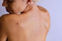 Young woman lookimg at birthmark on her back, skin. Checking benign moles Royalty Free Stock Photos