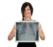 Young woman and monitor with x-ray chest Royalty Free Stock Photo