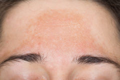Young woman with pigmented skin on her forehead Stock Photo