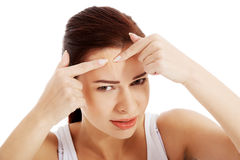 Young woman is pimpling spot on forehead. Royalty Free Stock Photo