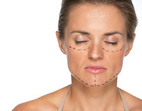 Young woman with plastic surgery marks Stock Image