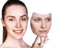 Young woman puts away mask with bad skin. Stock Photo