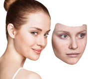Young woman puts away mask with bad skin. Royalty Free Stock Photos