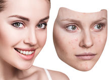 Young woman puts away mask with bad skin. Stock Photography