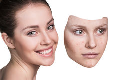Young woman puts away mask with bad skin. Stock Image