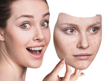 Young woman puts away mask with bad skin. Young woman puts away mask with bad acne skin over white background Royalty Free Stock Photography