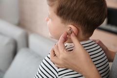 Young woman putting hearing aid in little son`s ear, closeup. Young woman putting hearing aid in little son`s ear indoors, closeup stock image