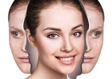 Woman rebirth from bad acne skin to perfect. Young woman rebirth from bad acne skin to perfect. Before and after treatment Royalty Free Stock Images