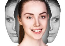 Woman rebirth from bad acne skin to perfect. Young woman rebirth from bad acne skin to perfect. Before and after treatment Stock Images