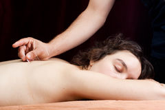 Young woman receiving acupuncture. A female patient receives acupuncture treatment on her back stock image