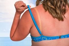 Woman with red sunburned shoulder - sunburn concept. Young woman with red sunburned shoulder - sunburn concept royalty free stock photos
