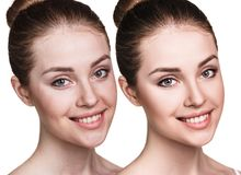 Young woman before and after retouch. Royalty Free Stock Photo