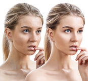 Young woman before and after retouch. Royalty Free Stock Images