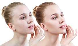Young woman before and after retouch. Stock Photo