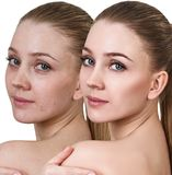 Young woman before and after retouch. Royalty Free Stock Photography