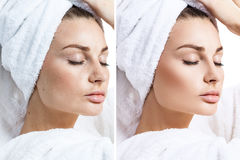 Young woman before and after retouch. Stock Photos