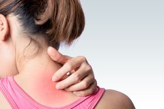 Rash at upper back. Young woman scratching upper back or neck rash on white background royalty free stock photography