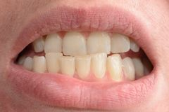 A young woman shows her crooked teeth that needs medical help in close-ups stock photography