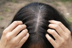 Young woman shows her gray hair roots. Close up stock photo