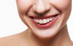 Dental braces. Young woman smile with dental braces Royalty Free Stock Photography