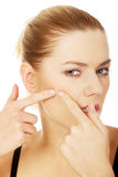 Young woman squeezes her acne. Stock Photography