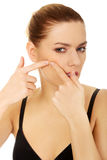 Young woman squeezes her acne. Royalty Free Stock Photography
