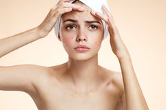 Young woman squeezing her pimple, removing pimple from her face. Woman skin care concept royalty free stock photo