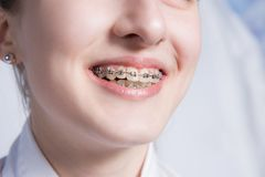 Young woman with teeth braces Stock Images