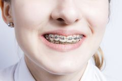 Young woman with teeth braces Stock Photo