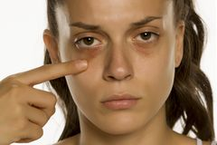Free Young Woman Touching Her Low Eyelids Royalty Free Stock Photography - 167612907