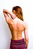 Young woman touching her sunburned neck. Rear view of young woman touching her sunburned neck Stock Photo