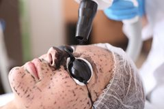 Young woman undergoing carbon peeling procedure. In salon Royalty Free Stock Photo