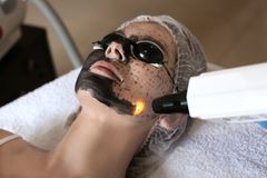 Young woman undergoing carbon peeling procedure. In salon royalty free stock photography