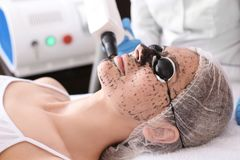 Young woman undergoing carbon peeling procedure. In salon Stock Image
