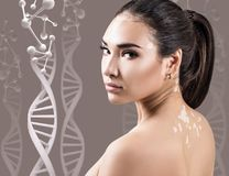Young sensual woman with vitiligo in DNA chains. Young woman with vitiligo in DNA chains over beige background royalty free stock image