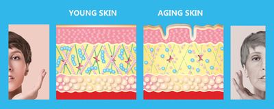 Younger skin and aging skin. elastin and collagen. The younger skin and aging skin. elastin and collagen. A diagram of young and old face showing the decrease royalty free stock photography