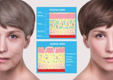 Free Younger Skin And Aging Skin. Elastin And Collagen. Stock Photos - 140161523