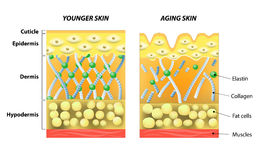 Younger skin and older skin. Younger skin and aging skin. elastin and collagen. A diagram of younger skin and aging skin showing the decrease in collagen and Stock Images
