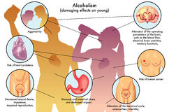 Youth alcoholism. Medical illustration of the damage caused by alcohol on young Royalty Free Stock Images
