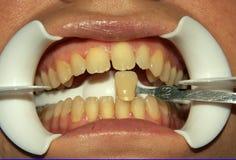 Zähne Stockbild