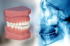 Zähne Modell und Röntgenstrahl stockfoto
