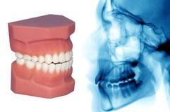 Zähne Modell und Röntgenstrahl an lokalisiert mit Stockbild