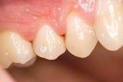 Zähne und Gingivitis Lizenzfreies Stockbild