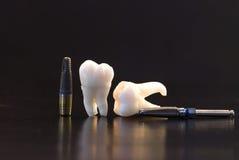Zähne und Implantate lizenzfreies stockfoto